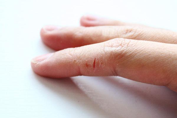 Сильно трескаются кожа на пальцах рук