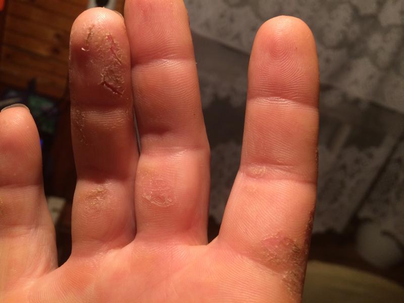 Шелушение кожи рук и трещины на ней