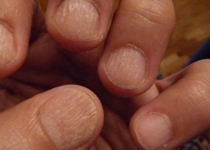 Деформация ногтей на руках у детей