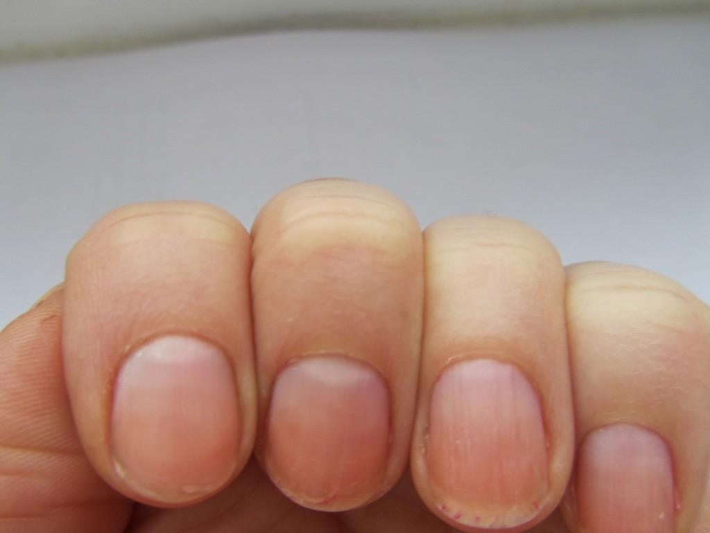 Выпуклые ногти на руках причина