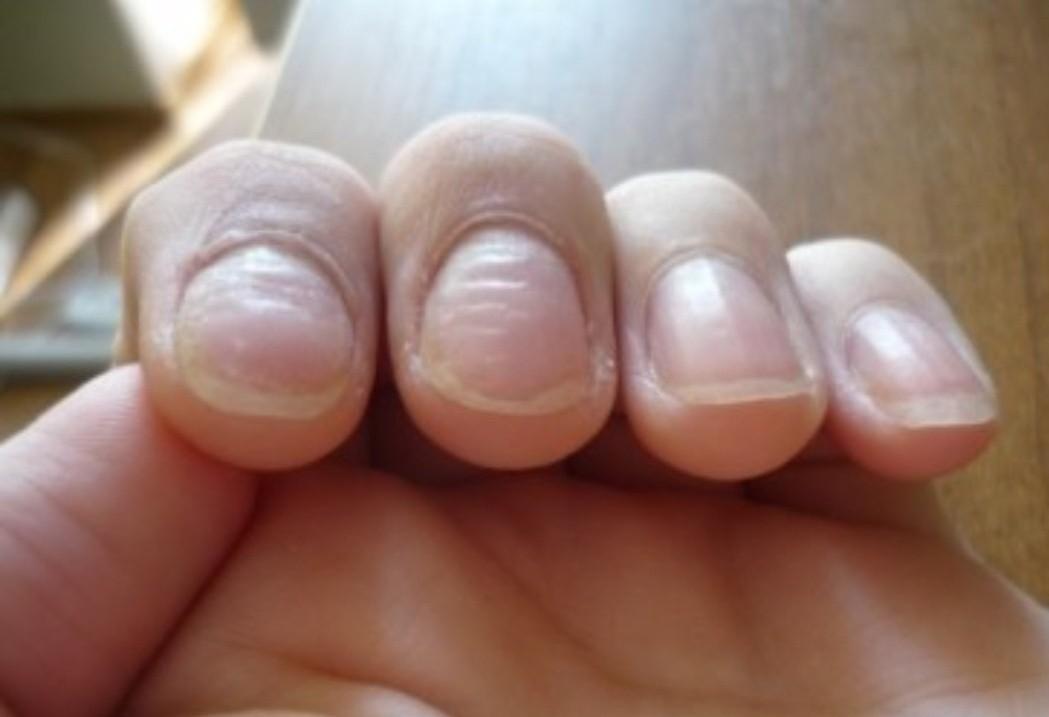 Неровные ногти на руках фото