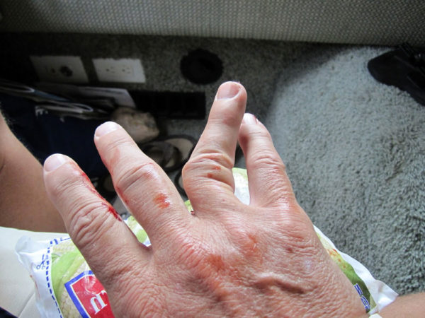 Лечение вывиха пальца руки в домашних условиях 703