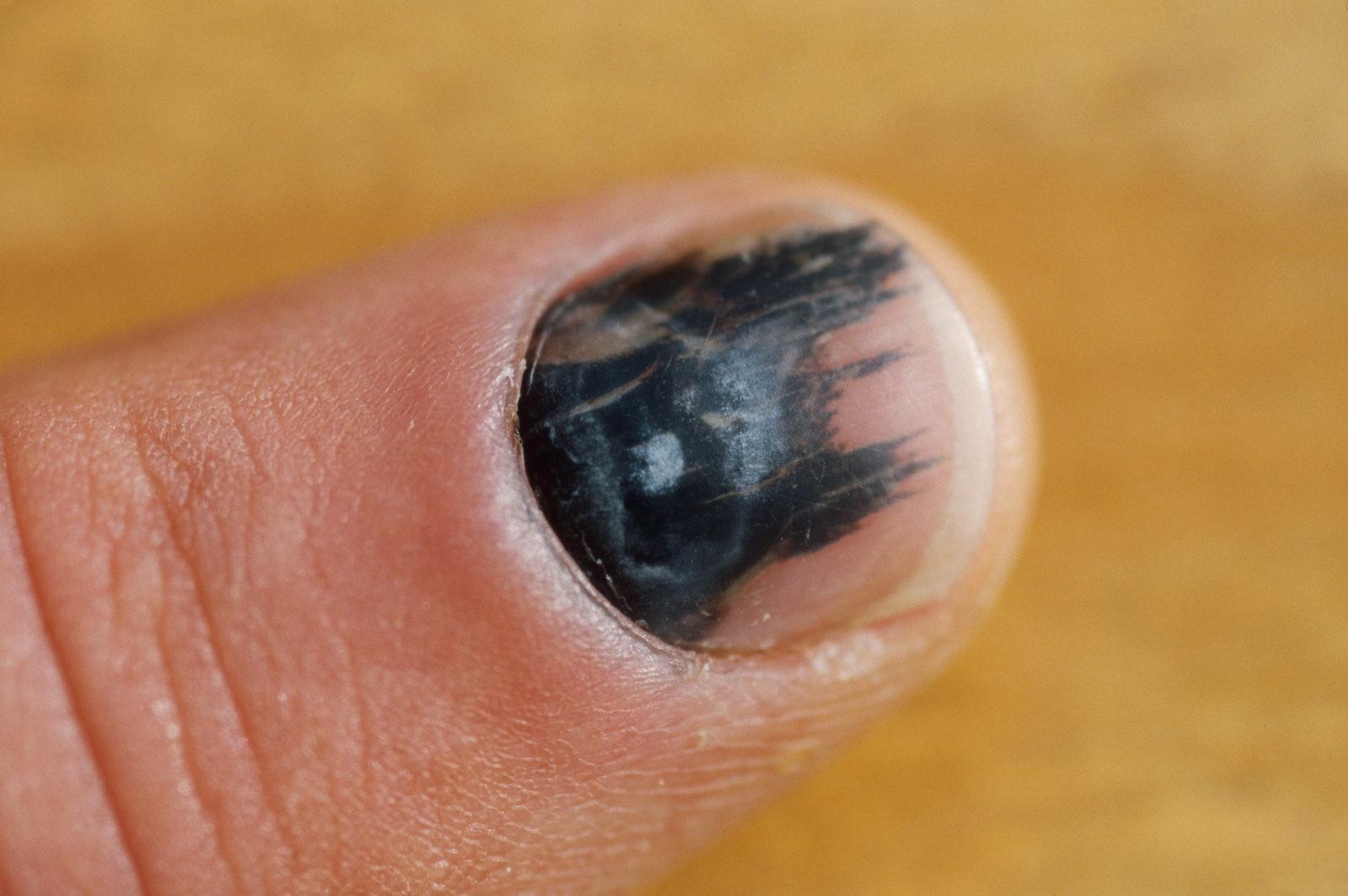 Ушиб ногтя на руке: что делать, если почернел ноготь на 6