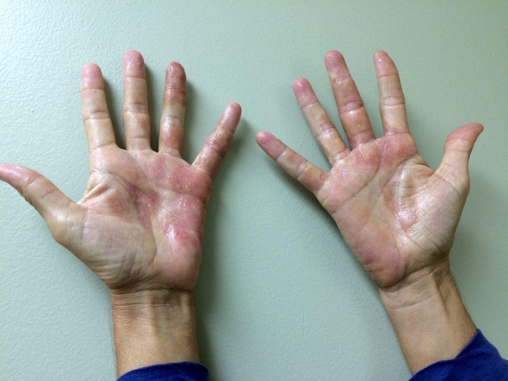 аллергический дерматит на руках фото