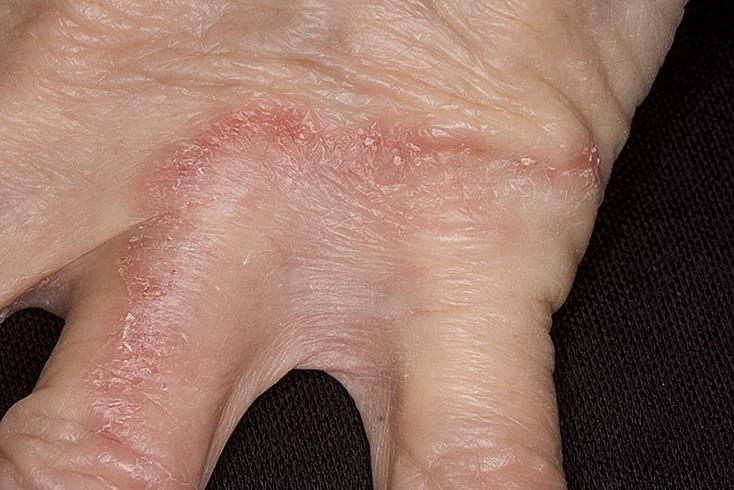 грибковые заболевания кожи фото на руках