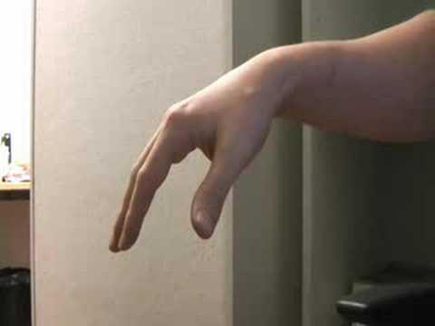 Опасность тремора: почему трясутся руки при волнении