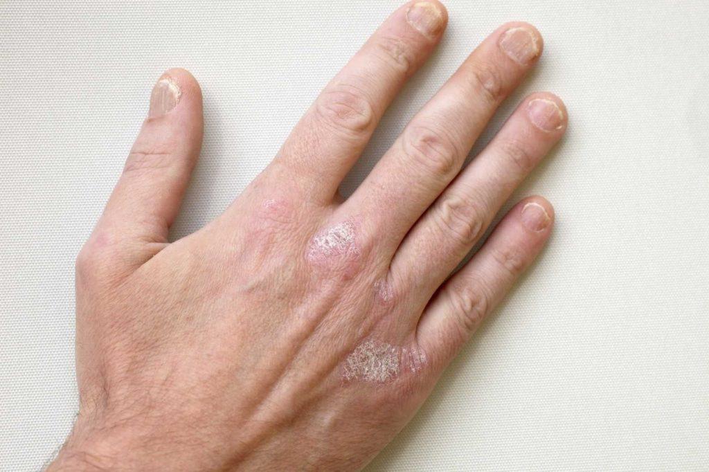 Покраснения на коже рук в виде пятен