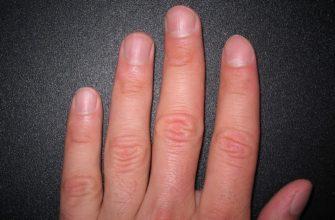 Проблема вросшего ногтя на руке - как лечить медицинскими и народными методами
