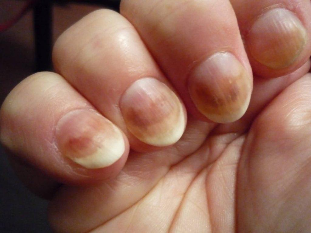 Грибковые заболевания кожи рук