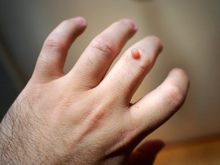 Виды бородавок на руках и пальцах рук: какие бывают, описание, фото, рекомендации врачей