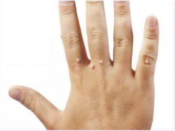 Как лечить бородавки на пальцах