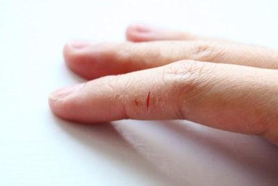 Как вылечить руки от трещин и сухости в домашних условиях с thumbnail