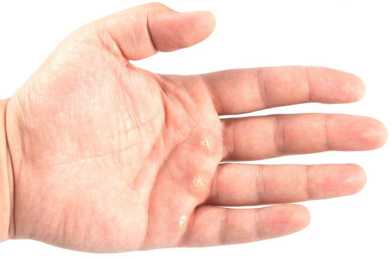 сухие мозоли на руках