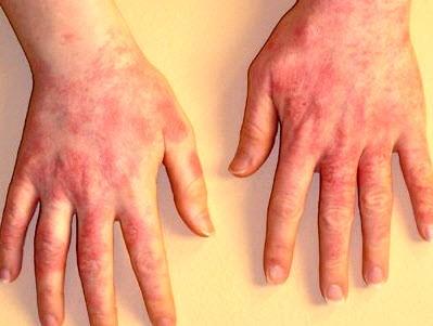 Контактный дерматит на руках - 6 способов лечения в домашних условиях