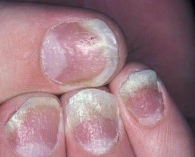 Вся правда о кандидозе ногтей - от симптомов и фото до лечения и профилактики