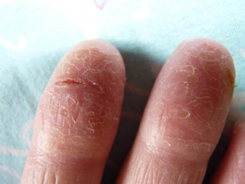 Сухость кожи на суставах пальцев рук почему болят суставы на ногах и руках