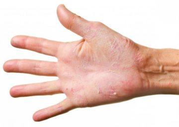 Крем для заживления трещин на пальцах рук