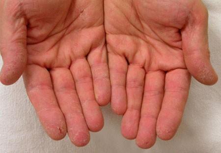 Онихомикозы ногтей на руках фото