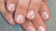 Витамины для ногтей: укрепления, роста, от ломкости