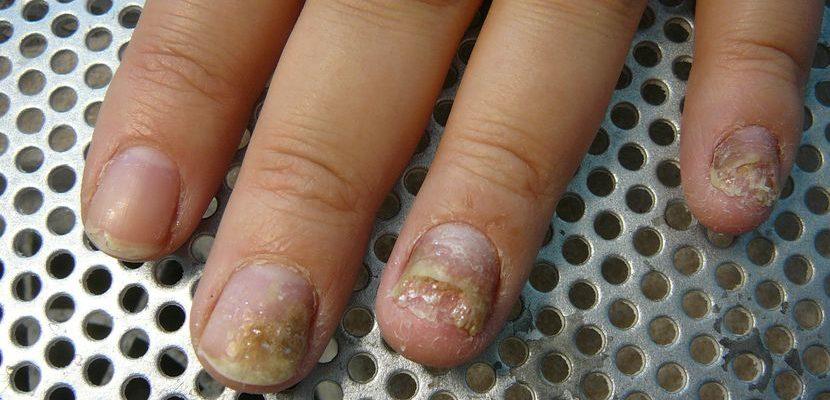 О чем говорят нити мицелия на ногтях