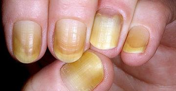 Почему желтеют ногти на руках?