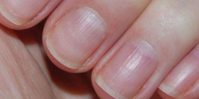 Так почему ногти становятся волнистыми на пальцах рук и как с этим бороться