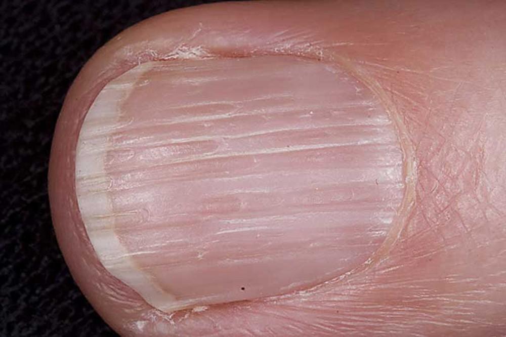 углубление на ногтевой пластине у ребенка