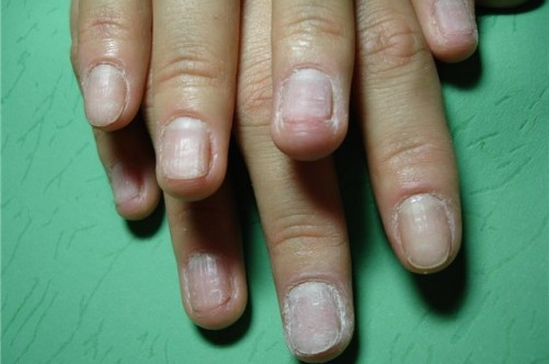 Как после наращивания восстановить ногтевую пластину