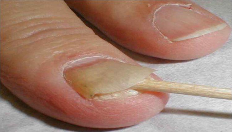 Что делать, если ногтевая пластина отходит от пальца рук