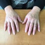 Как появляется псориаз на руках - симптомы, стадии и причины возникновения