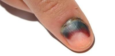 Травма ногтевого ложа