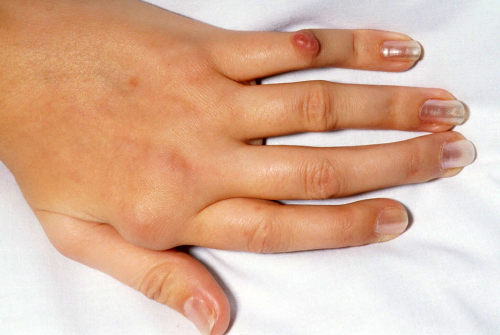 Артроз пальцев рук: причины, симптомы, что делать, лечение, фото.