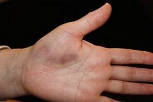 Боль опухоль в суставе пальца разрушение хряща коленного сустава