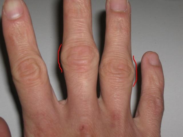 артрит пальцев рук симптомы и лечение
