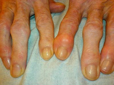 как лечить артрит на пальцах рук,лечение артрита пальцев рук,артрит пальцев рук симптомы,ревматоидный артрит пальцев рук,артрит суставов пальцев рук,
