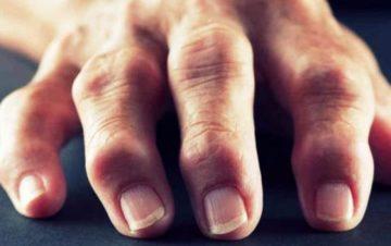 Артрит пальцев рук - что это и куда бежать?
