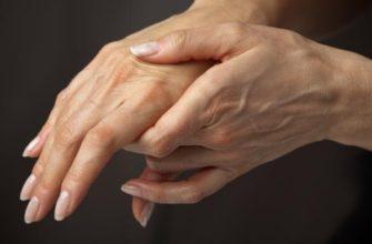 Подагра пальцев рук - как лечить болезненные шишки на пальцах
