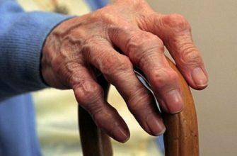 Лечение артроза пальцев рук - как и что делать?