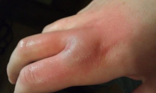 Бурсит на руках - причины и симптомы