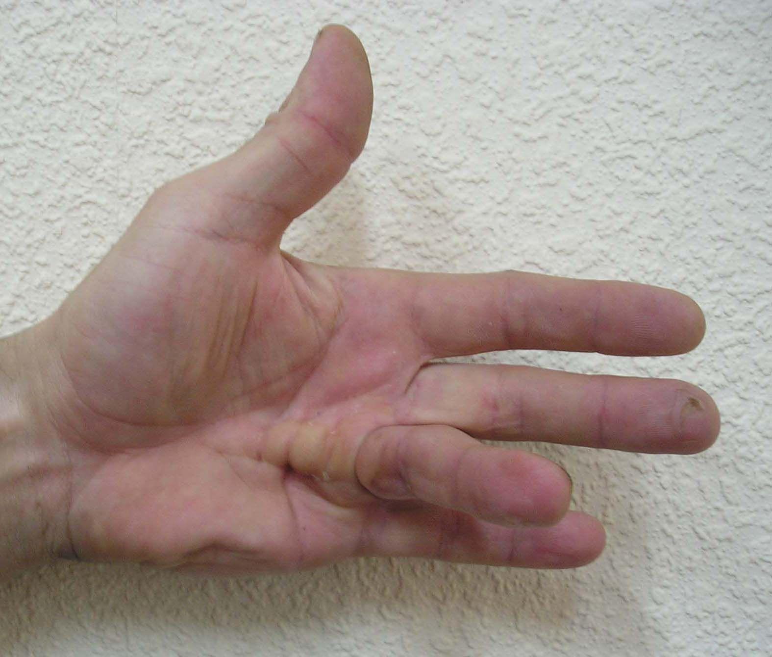 Болит и не сгибается палец на руке кольпоскопия выявляет рак
