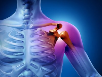 Болят плечевые суставы от поднятия тяжестей thumbnail