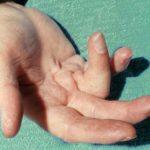Что делать, если не разгибается палец на руке