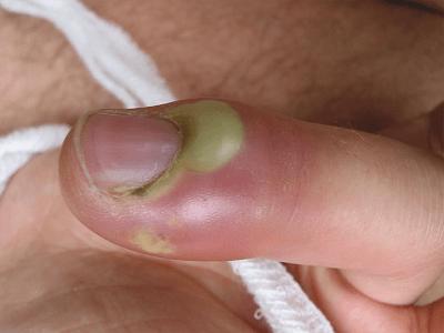 Нарывает палец после маникюра: Почему? Что это значит? Как лечить?