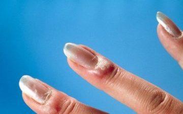 Что делать с воспалением после маникюра