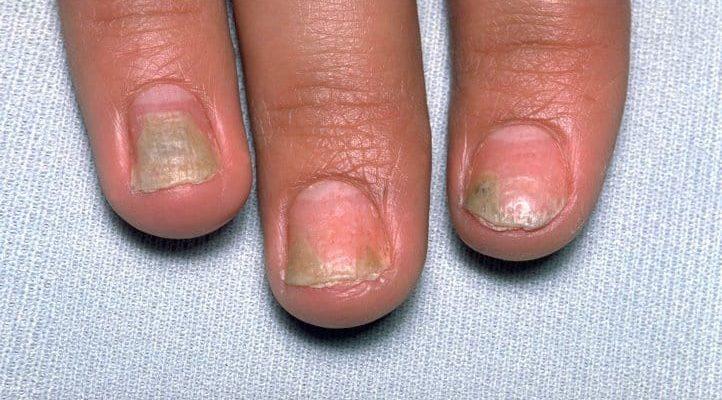 Как псориатический артрит может повредить ваши ногти